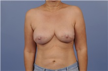 Breast Reconstruction After Photo by Trent Douglas, MD; Greenbrae, CA - Case 31409