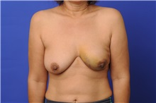 Breast Reconstruction Before Photo by Trent Douglas, MD; Greenbrae, CA - Case 31409