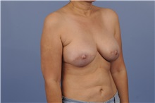 Breast Reconstruction After Photo by Trent Douglas, MD; San Diego, CA - Case 31409