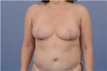 Breast Reduction After Photo by Trent Douglas, MD; San Diego, CA - Case 31410
