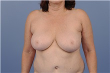 Breast Reduction Before Photo by Trent Douglas, MD; San Diego, CA - Case 31410
