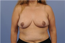 Breast Reduction After Photo by Trent Douglas, MD; San Diego, CA - Case 31411