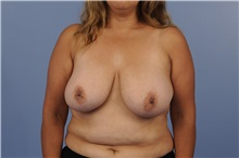 Breast Reduction Before Photo by Trent Douglas, MD; San Diego, CA - Case 31411