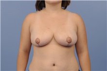 Breast Reduction After Photo by Trent Douglas, MD; San Diego, CA - Case 31412