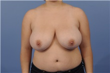 Breast Reduction Before Photo by Trent Douglas, MD; San Diego, CA - Case 31412
