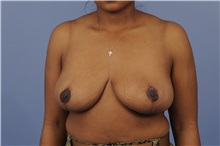 Breast Reduction After Photo by Trent Douglas, MD; San Diego, CA - Case 31413