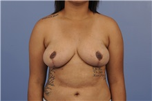 Breast Reduction After Photo by Trent Douglas, MD; Greenbrae, CA - Case 31414