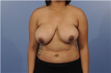 Breast Reduction Before Photo by Trent Douglas, MD; San Diego, CA - Case 31414