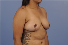 Breast Reduction After Photo by Trent Douglas, MD; San Diego, CA - Case 31414