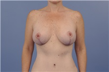 Body Contouring After Photo by Trent Douglas, MD; San Diego, CA - Case 31417