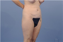 Body Contouring Before Photo by Trent Douglas, MD; San Diego, CA - Case 31417