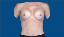 Breast Augmentation After Photo by Trent Douglas, MD; San Diego, CA - Case 32807