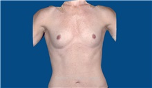 Breast Augmentation Before Photo by Trent Douglas, MD; San Diego, CA - Case 32807