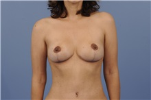 Breast Lift After Photo by Trent Douglas, MD; Greenbrae, CA - Case 32810