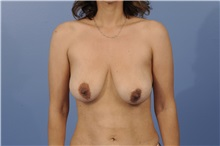 Breast Lift Before Photo by Trent Douglas, MD; Greenbrae, CA - Case 32810