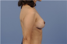 Breast Lift After Photo by Trent Douglas, MD; San Diego, CA - Case 32810