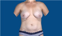 Breast Augmentation After Photo by Trent Douglas, MD; San Diego, CA - Case 32870