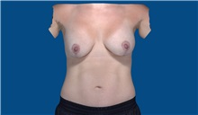 Breast Augmentation After Photo by Trent Douglas, MD; San Diego, CA - Case 32871