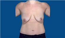 Breast Augmentation Before Photo by Trent Douglas, MD; San Diego, CA - Case 32871
