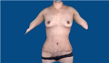 Tummy Tuck After Photo by Trent Douglas, MD; Greenbrae, CA - Case 32872
