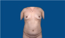 Tummy Tuck Before Photo by Trent Douglas, MD; San Diego, CA - Case 32872