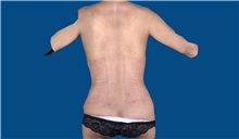 Tummy Tuck After Photo by Trent Douglas, MD; San Diego, CA - Case 32872