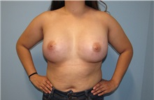 Breast Augmentation After Photo by Trent Douglas, MD; San Diego, CA - Case 33858