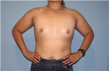 Breast Augmentation Before Photo by Trent Douglas, MD; San Diego, CA - Case 33858