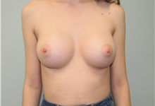 Breast Augmentation After Photo by Trent Douglas, MD; San Diego, CA - Case 35109