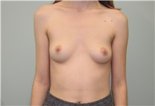 Breast Augmentation Before Photo by Trent Douglas, MD; San Diego, CA - Case 35109