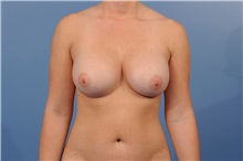 Breast Augmentation After Photo by Trent Douglas, MD; Greenbrae, CA - Case 35161