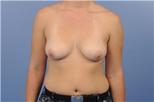 Breast Augmentation Before Photo by Trent Douglas, MD; Greenbrae, CA - Case 35161
