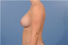 Breast Augmentation After Photo by Trent Douglas, MD; San Diego, CA - Case 35161