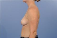 Breast Augmentation Before Photo by Trent Douglas, MD; San Diego, CA - Case 35161