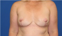 Breast Implant Removal After Photo by Trent Douglas, MD; Greenbrae, CA - Case 35868