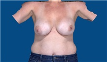 Breast Implant Removal Before Photo by Trent Douglas, MD; Greenbrae, CA - Case 35868