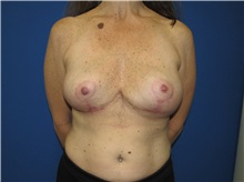 Breast Implant Removal After Photo by Trent Douglas, MD; San Diego, CA - Case 35869