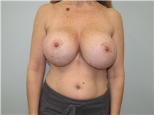 Breast Implant Removal Before Photo by Trent Douglas, MD; San Diego, CA - Case 35869