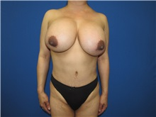 Breast Implant Removal Before Photo by Trent Douglas, MD; Greenbrae, CA - Case 35870