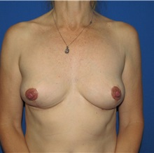 Breast Implant Removal After Photo by Trent Douglas, MD; San Diego, CA - Case 35920