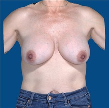 Breast Implant Removal Before Photo by Trent Douglas, MD; Greenbrae, CA - Case 35920