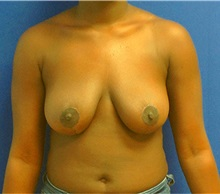 Breast Reduction After Photo by Ankit Desai, MD; Jacksonville, FL - Case 34038