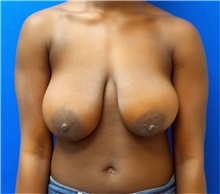 Breast Reduction Before Photo by Ankit Desai, MD; Jacksonville, FL - Case 34038