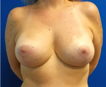Breast Augmentation After Photo by Ankit Desai, MD; Jacksonville, FL - Case 34042