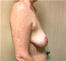 Breast Augmentation Before Photo by Ankit Desai, MD; Jacksonville, FL - Case 34042