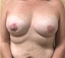 Breast Reconstruction After Photo by Ankit Desai, MD; Jacksonville, FL - Case 34060