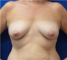 Breast Reconstruction Before Photo by Ankit Desai, MD; Jacksonville, FL - Case 34060