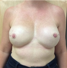 Breast Reconstruction After Photo by Ankit Desai, MD; Jacksonville, FL - Case 34064