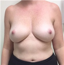 Breast Reconstruction Before Photo by Ankit Desai, MD; Jacksonville, FL - Case 34064