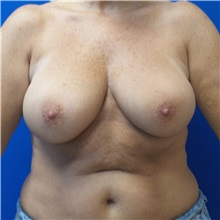 Breast Reconstruction Before Photo by Ankit Desai, MD; Jacksonville, FL - Case 34065